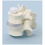 Vértebras lombares - 2