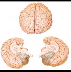 Cérebro com artérias - 2 Partes