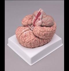 Cérebro com artérias - 9 partes
