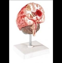 Doenças cerebrais