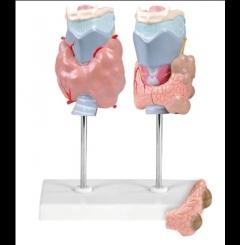 Doenças da tiróide - 4 partes