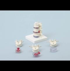 Vértebras lombares c/discos intervertebrais prolapsos (s/suporte)