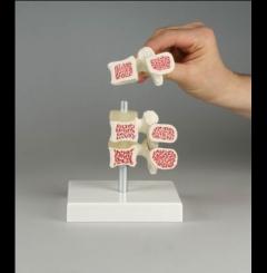 Vértebra c/osteoporose - 3 vértebras