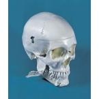Crânio - dentição - 4 partes