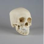 Crânio de criança - 12 anos de idade