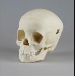 Crânio de criança - 5 anos de idade