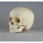 Crânio de criança - 3 anos de idade
