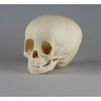 Crânio de criança - 1 ano e meio de idade