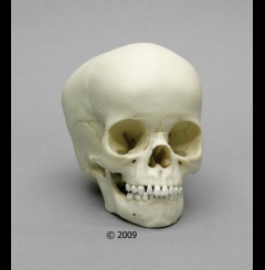 Crânio de criança - 4 anos de idade