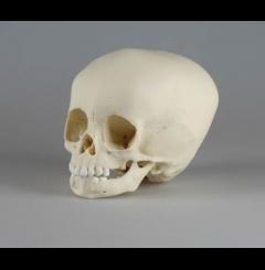 Crânio de criança - 15 meses de idade
