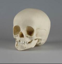 Crânio de criança - 14 meses de idade