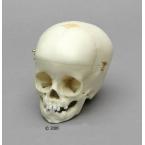 Crânio de criança - 1 ano de idade