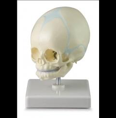Crânio de feto - 30 semanas