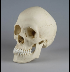 Crânio scapocefálico