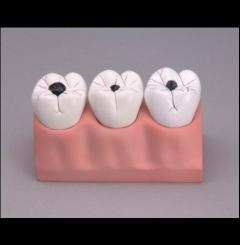 Modelo de cáries dentais