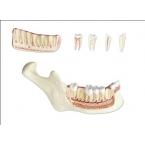 Maxilar inferior - 6 partes