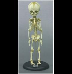Esqueleto criança - 30 semanas de gravidez