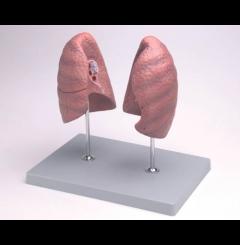Pulmão direito e esquerdo