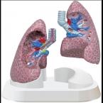 Conj. de pulmões c/patologias