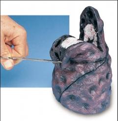 Modelo de cancro no pulmão