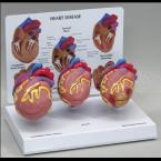 Modelo de doenças cardíacas