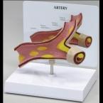 Modelo de arteriosclerose