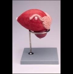 Bexiga masculina com próstata - 2 Partes