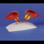 Modelo da próstata - 2 partes