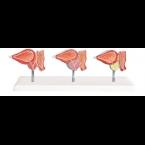 Glândula da próstata saudável e c/doença