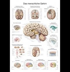 Quadro do cérebro (70 x 100)