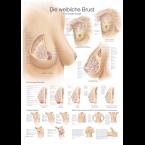 Quadro do peito feminino (50 x 70)