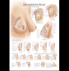 Quadro do peito feminino (70 x 100)