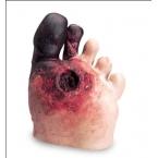 Modelo de pé doente