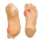 Problemas dos pés (mais comuns)