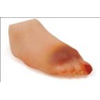 Modelo de pé - diabético - fase avançada