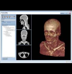 Software Anatómico